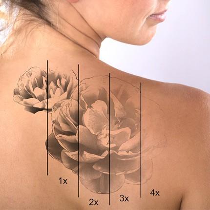 Laser Q-Switch-usuwanie tatuażu i odbarwionego makijażu permanentnego
